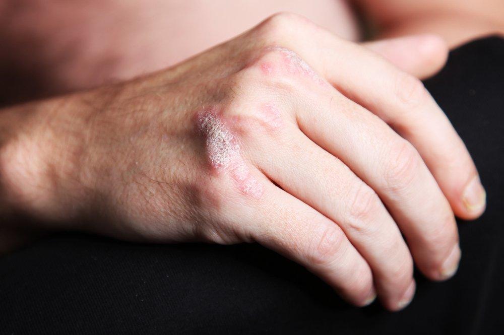 psoriasis hoofdhuid besmettelijk