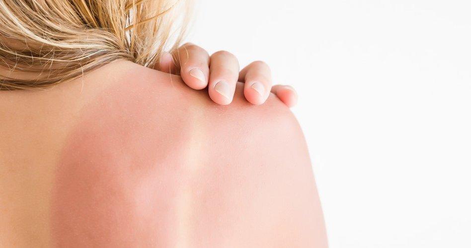 Het Effect Van De Zonnebank Op Je Huid